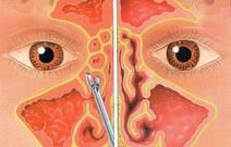 FESS (Ενδοσκοπική Χειρουργική Ρινός - Παραρρινίων)