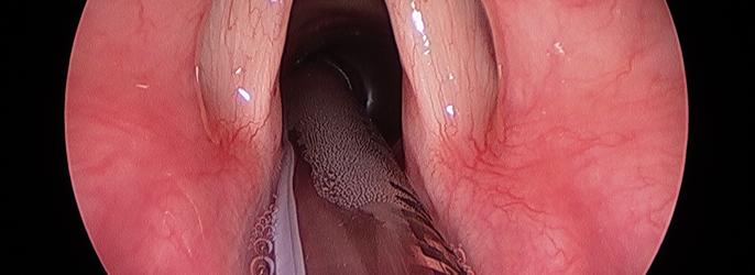 Φωνομικροχειρουργική